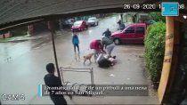 video: terrible ataque de un pitbull a una nena de 7 anos