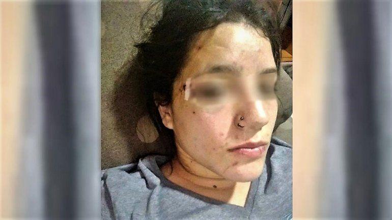 La atacaron brutalmente afuera de un boliche para Año Nuevo