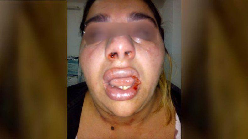 Una joven de Cinco Saltos denunció que su ex pareja la desfiguró a golpes