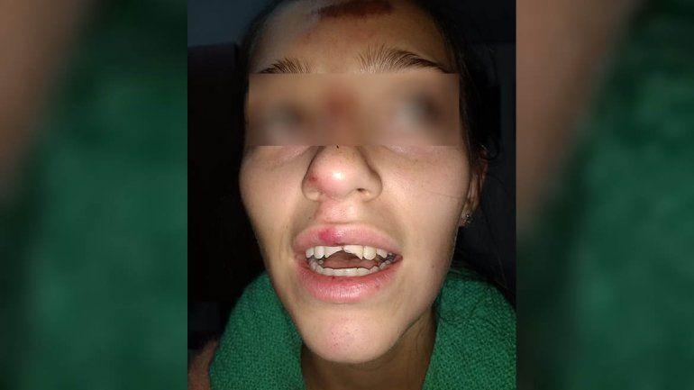 Brutal ataque de perros a una joven estudiante en el barrio Pichi Nahuel