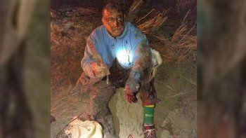 el campesino conto como fue la pelea contra el puma