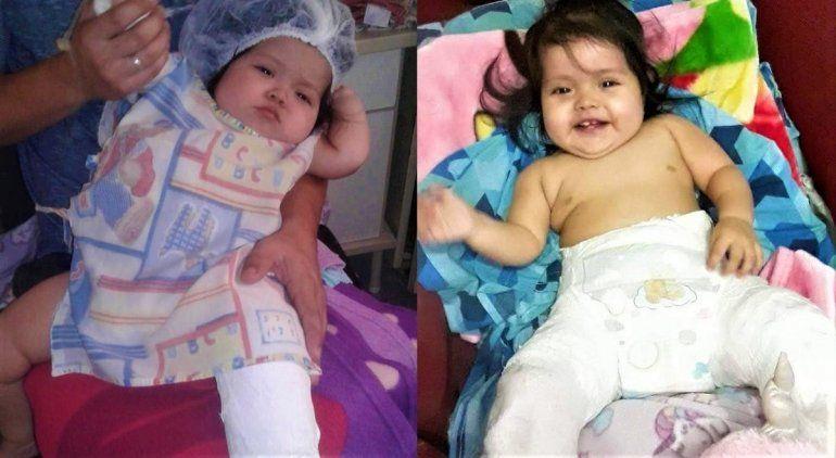 Nació con la cadera desplazada, la operaron 3 veces y sigue igual