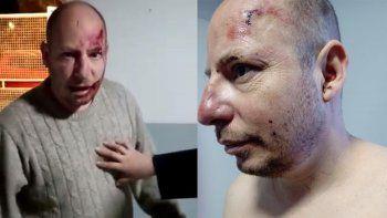 cipolletti: acusan a dos policias de un violento desalojo en el dvn