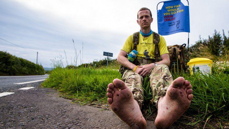 Camina descalzo por todo Reino Unido para poder salvar a su hijita