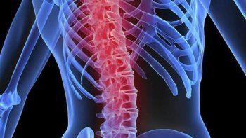 Hoy es el Día Mundial de la Osteoporosis