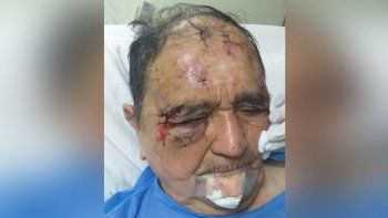 La pareja que atacó un abuelo estará cuatro meses en prisión