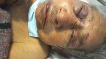 esta en coma el abuelo atacado por delincuentes
