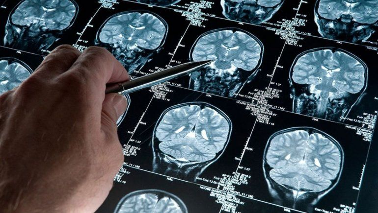 Hallan un gen que evita signos del Alzheimer en células cerebrales