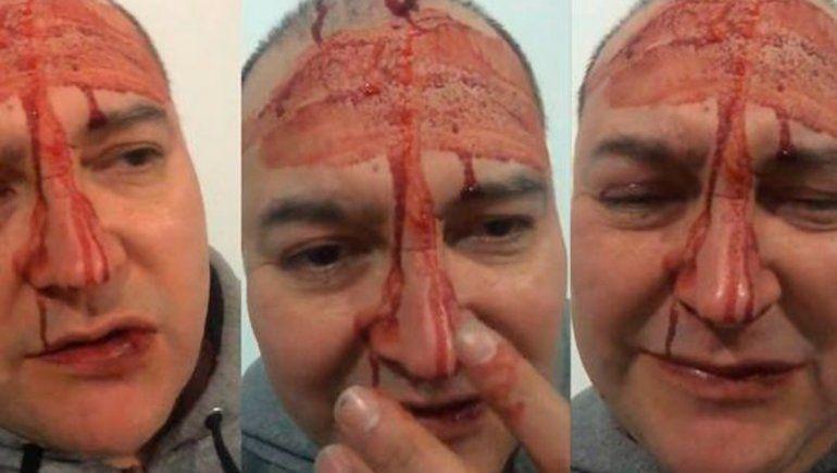 ¿Leo García mintió? Difundieron el video completo de la agresión