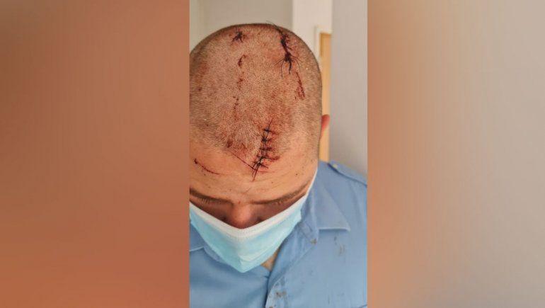 Brutal golpiza a efectivo policial neuquino en plena calle