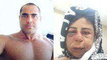 un luchador brasileno torturo y desfiguro a golpes a su esposa