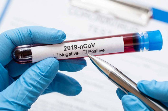 El número de casos positivos de Covid-19 continúan aumentando en el mundo