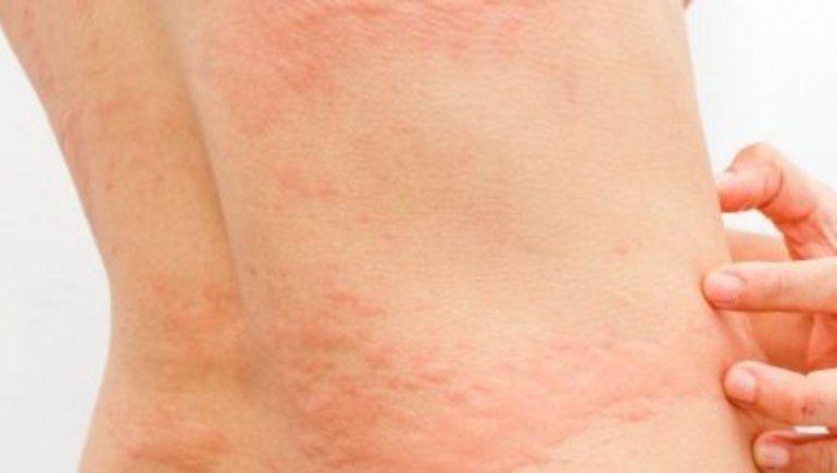 Covid-19: erupción cutánea, otro síntoma de la enfermedad
