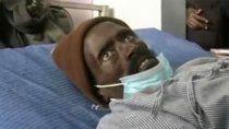 increible: lo dieron por muerto y resucito en la morgue cuando lo embalsamaban