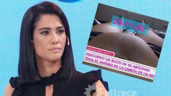 Delfina Gerez Bosco contó que le quitaron un tumor de 750 gramos