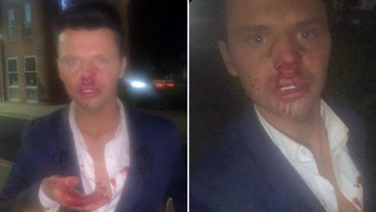 Brutal ataque homofóbico al Ken humano en un bar