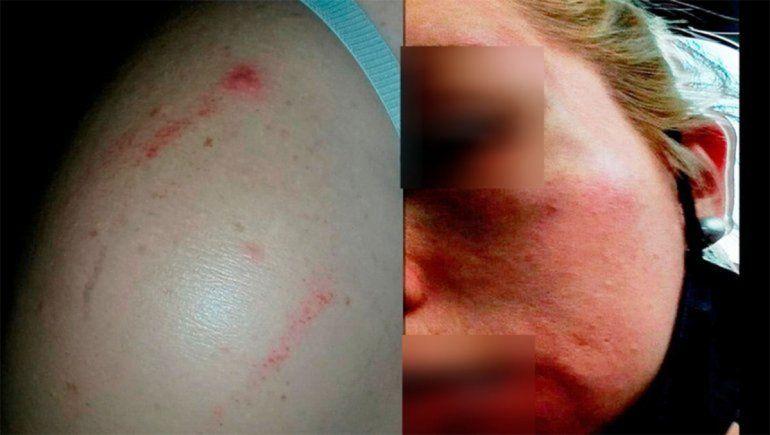 Cipo: su ex la hostiga, golpea y amenaza