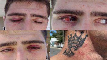 En las redes, Emiliano difundió su relato y fotos de las heridas recibidas.
