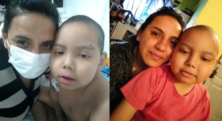 Murió Mateo, el nene cipoleño que padecía leucemia