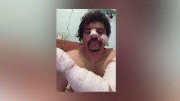 Brutal ataque a puñaladas un taxista en un confuso episodio
