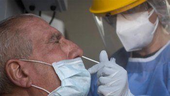 en el pais se reportaron 24.086 casos y 399 muertes por coronavirus