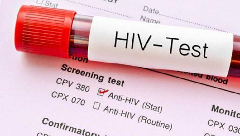 Caso único: una paciente argentina logró controlar el VIH sin medicación