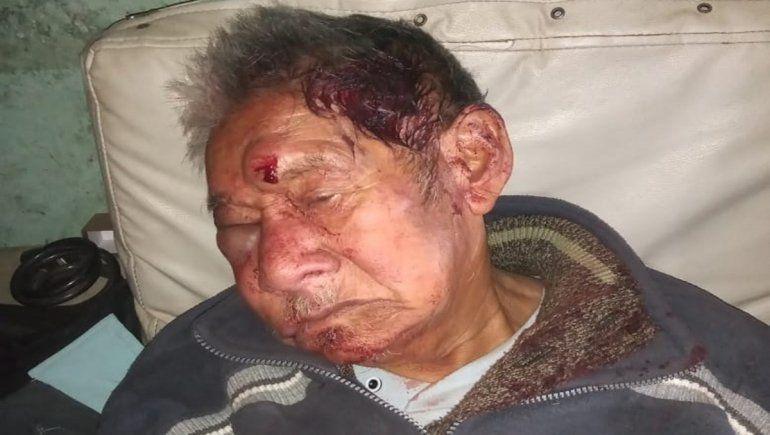 Antonio, un abuelo de 97 años, fue ferozmente atacado por los delincuentes que irrumpieron en su casa para robarle la jubilación.