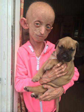 El extraño caso Benjamín Button: tenía 18 años y falleció con un cuerpo de 144