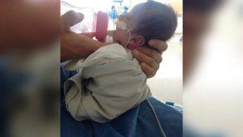 Josefina y su historia milagrosa: nació con medio kilo y sobrevivió