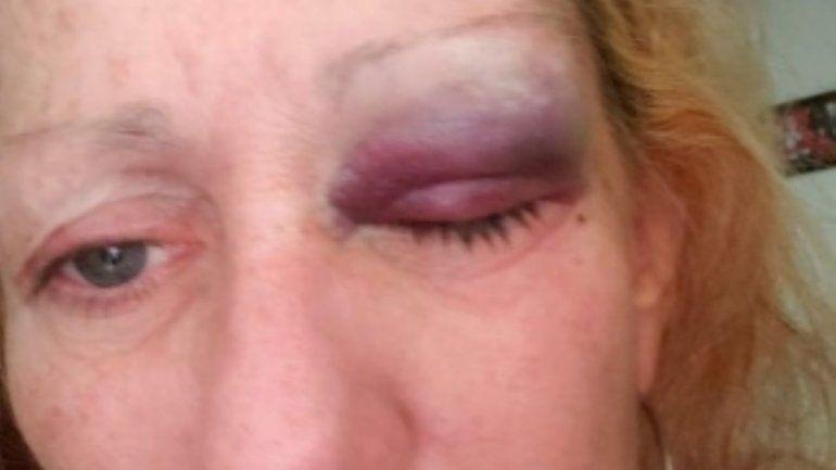La víctima había hecho 40 denuncias por violencia de género contra su ex pareja.