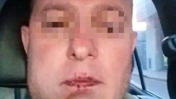 Volvía de vacaciones, lo detuvieron por error y le quebraron la mandíbula