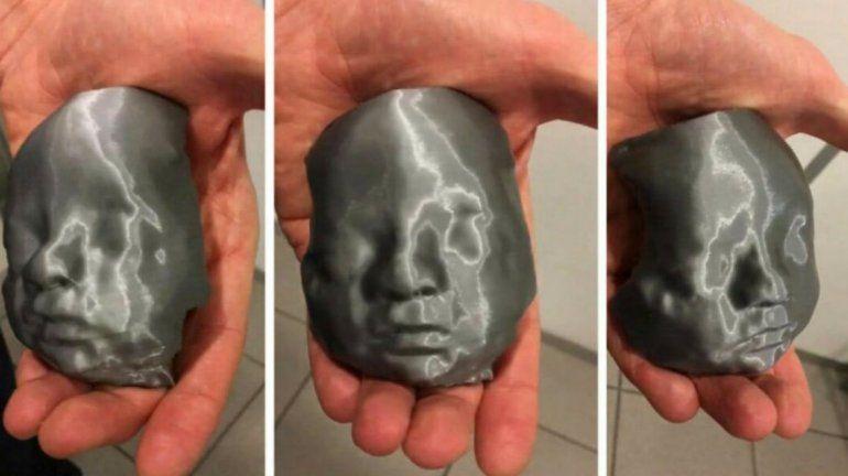 Impresionante: hicieron una ecografía 3D para que los padres pudieran conocer a su bebé
