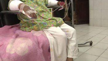 brutal: le quemo las manos a su hijita por robar golosinas