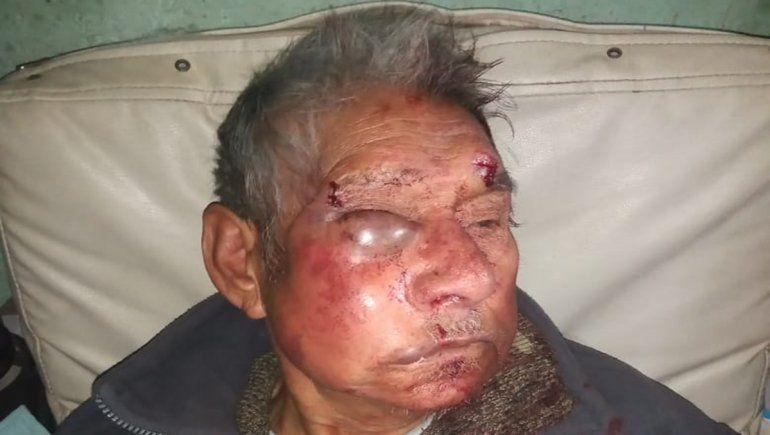 El abuelo Antonio Martínez está internado en coma en el hospital Castro Rendón.