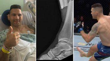 luchador mostro como le quedo la pierna tras una grave fractura en plena pelea