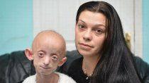 el extrano caso benjamin button: tenia 18 anos y fallecio con un cuerpo de 144