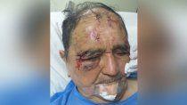 la pareja que ataco un abuelo estara cuatro meses en prision