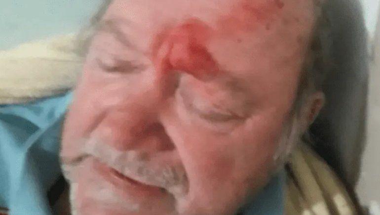 Jubilado que mató a un ladrón: Tiré tres o cuatro veces