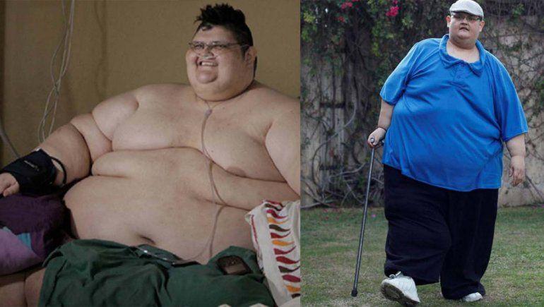 El hombre más gordo del mundo venció al coronavirus