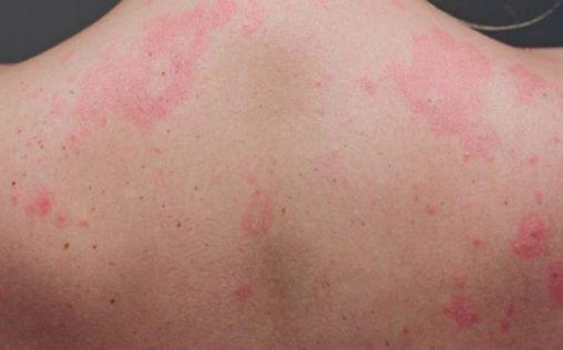 Covid-19: erupciones cutáneas, otro síntoma de la enfermedad