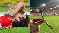 tremenda lesion y lagrimas de dolor de futbolista en mexico