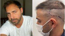 las redes, revolucionadas por el implante capilar de grego rossello
