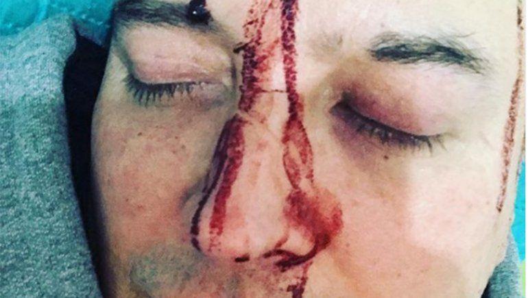 Leo García sufrió un brutal ataque homofóbico y lo denunció en redes