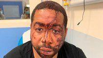 francia: policias le dieron una paliza a un hombre negro