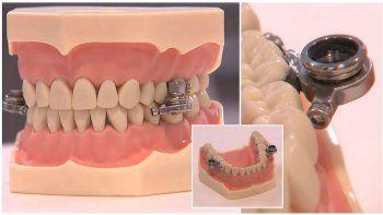 inventan un polemico cepo dental para bajar de peso a la fuerza